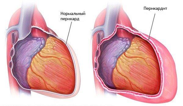 gallérmasszázs hipertónia megnövekedett testhőmérséklet és magas vérnyomás