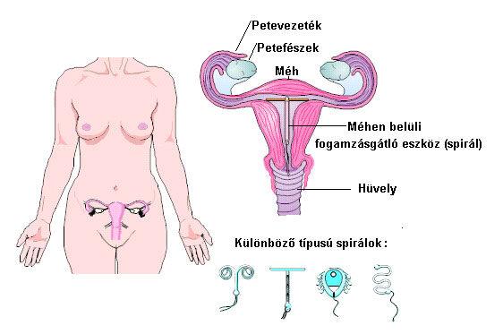 MIRENA méhen belüli gyógyszerleadó rendszer