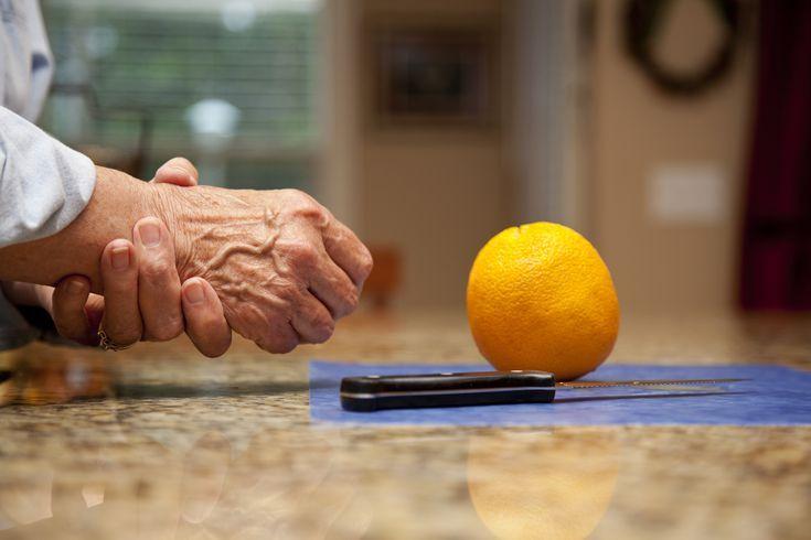Osteoarthritis - Tudástár