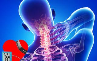 a nyaki hipertónia osteochondrosisában
