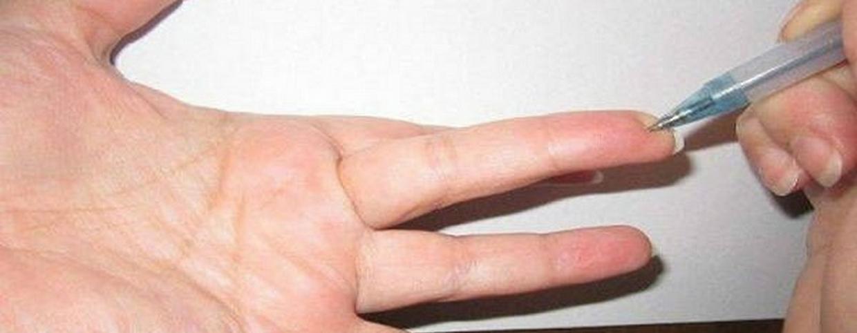 gyakorlatok a magas vérnyomásban szenvedő kezek számára