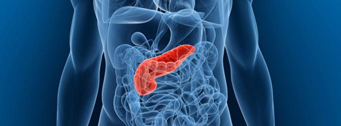 magas vérnyomás és krónikus hasnyálmirigy-gyulladás magas vérnyomás szorongás