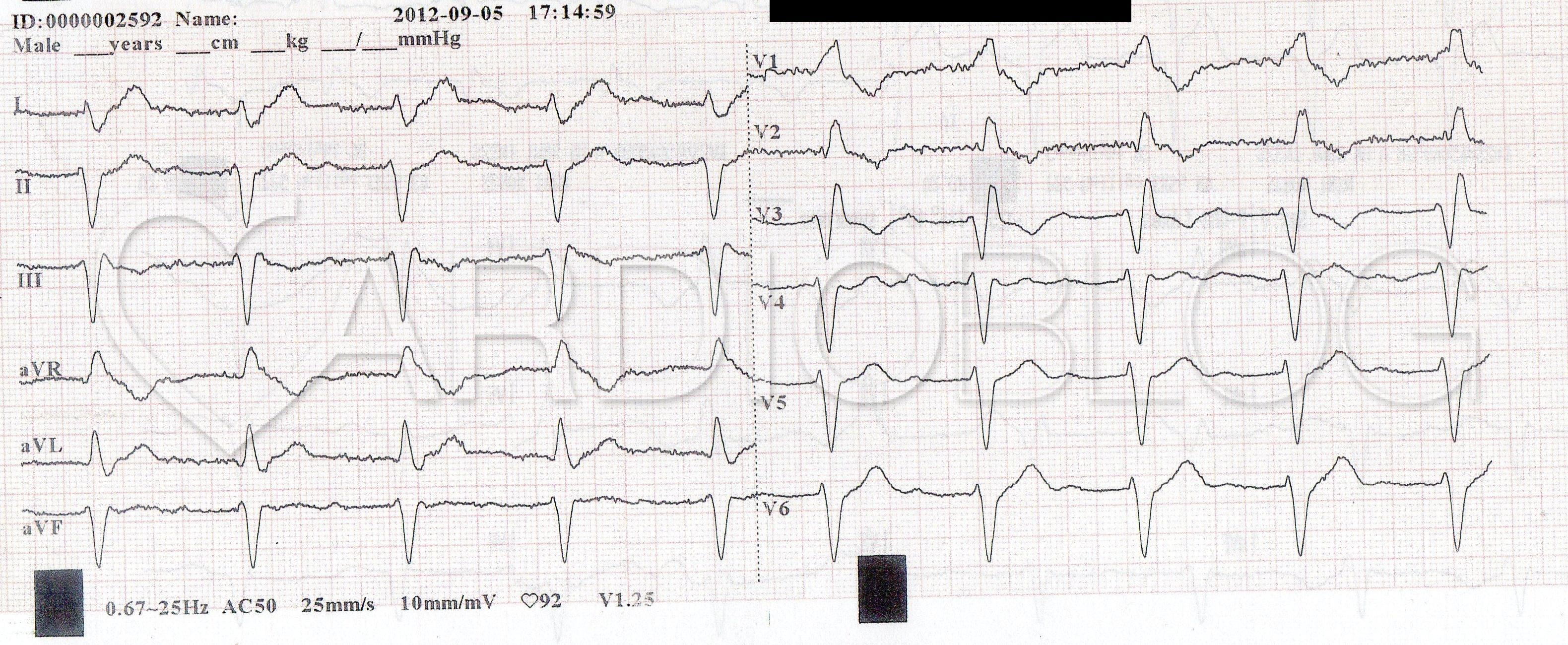 az EKG következtetése a magas vérnyomásban)