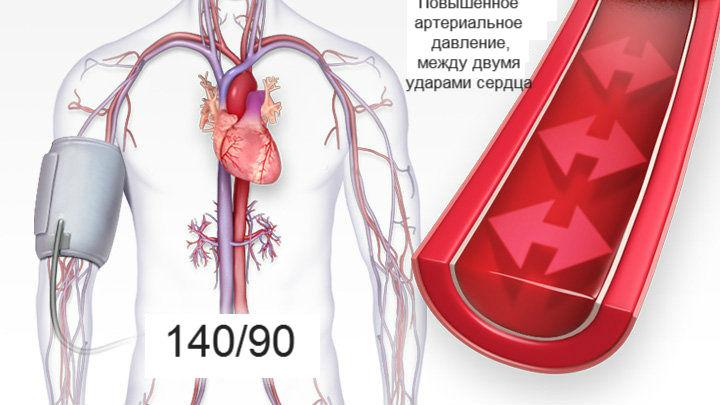 hasznos magas vérnyomás masszázshoz