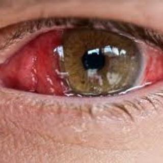 szemek magas vérnyomás fotó