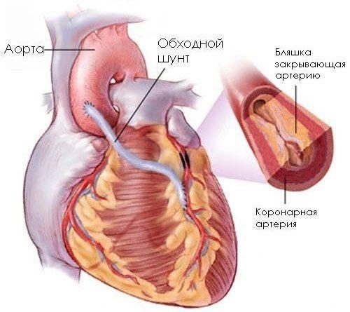 Neurocirculatory dystonia: tünetek és kezelés