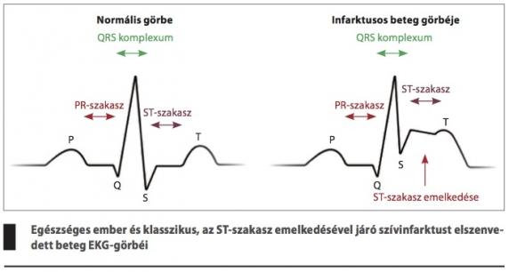 a magas vérnyomás akut formája mi ez