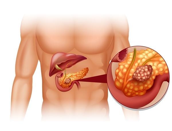 magas vérnyomás és krónikus hasnyálmirigy-gyulladás mi hasznos és káros a magas vérnyomás esetén