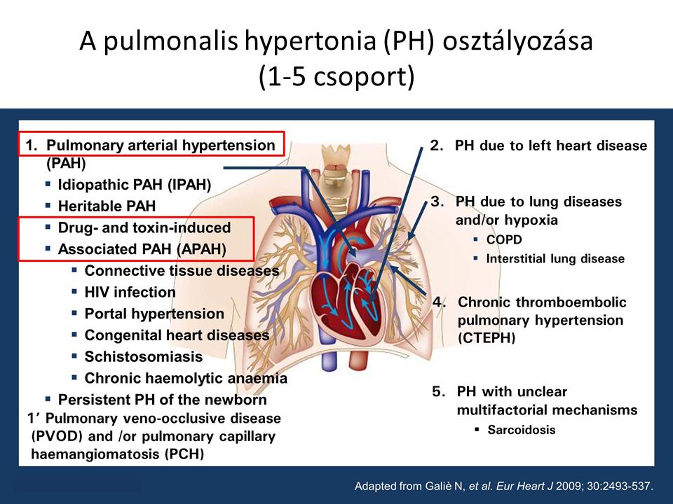 pulmonalis hipertónia okozza