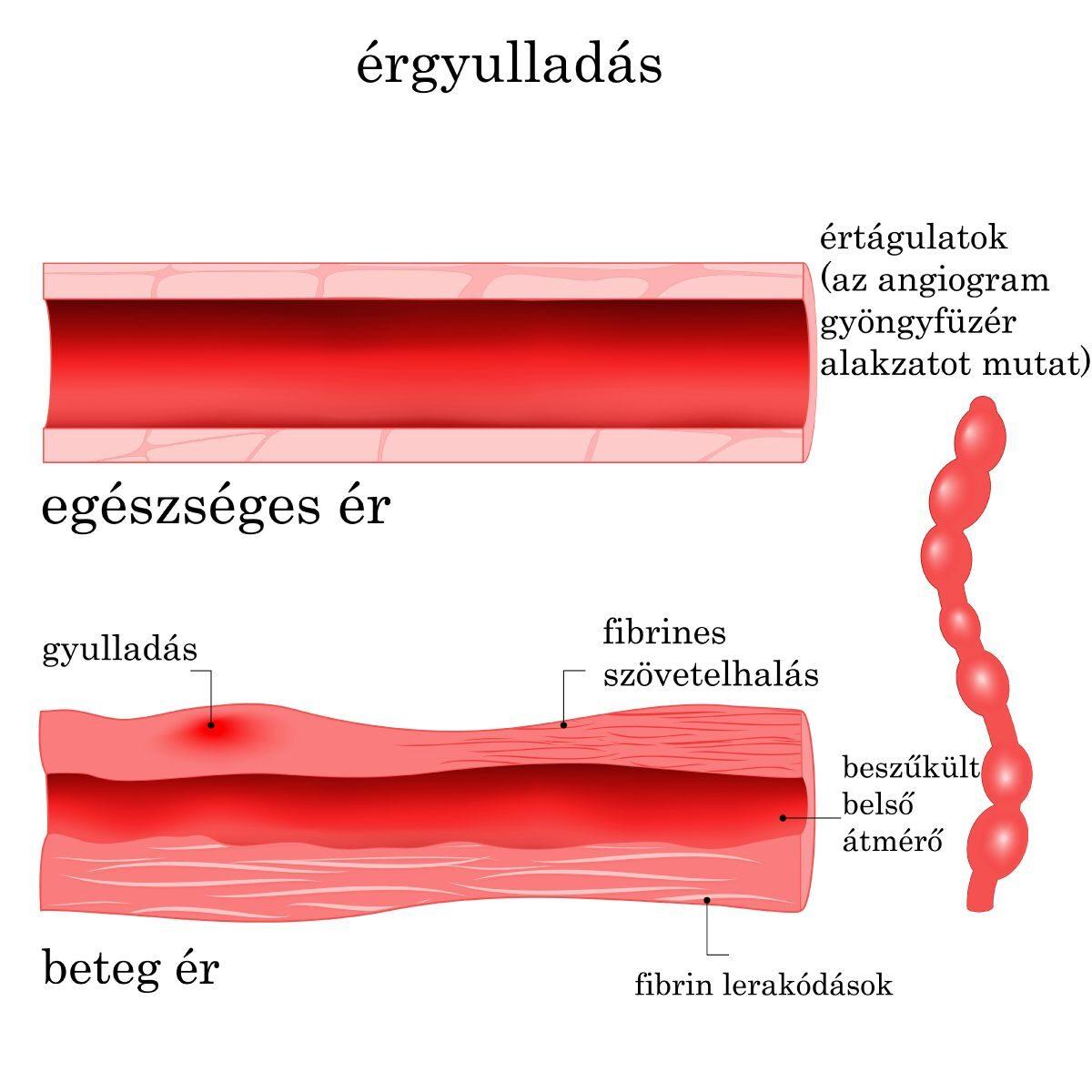 viaszmoly hipertónia kezelése