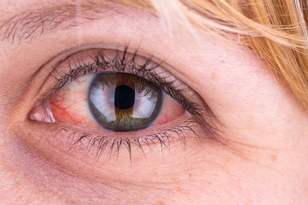 vizes szemek magas vérnyomásban miért és mit kell tenni