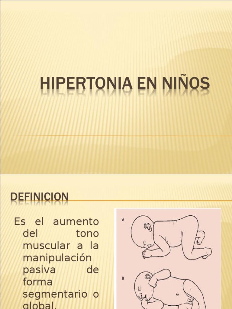 a hipertónia meghatározva van)