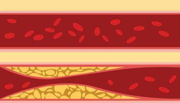 Magas vérnyomás és annak szakaszai. Nem csak a kiugróan magas értékeket kell kezelni