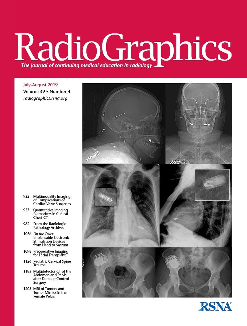 Osteochondrosis prosztatitis A fiatalok prosztatajáról
