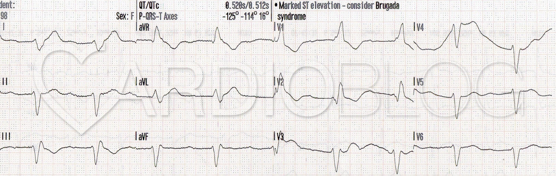 az EKG következtetése a magas vérnyomásban