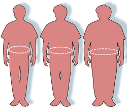 az elhízás hipertóniájának következményei)