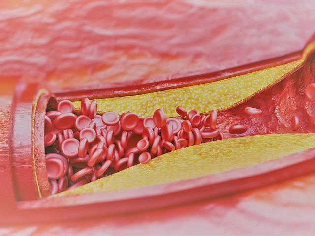 pollen és magas vérnyomás hipertónia jelei 1 fok