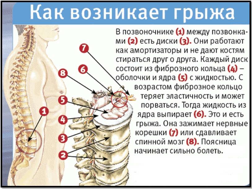 hipertónia kezelése osteochondrosisban)