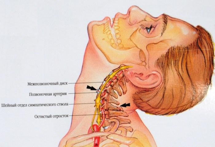 terápiás torna nyakra magas vérnyomás esetén