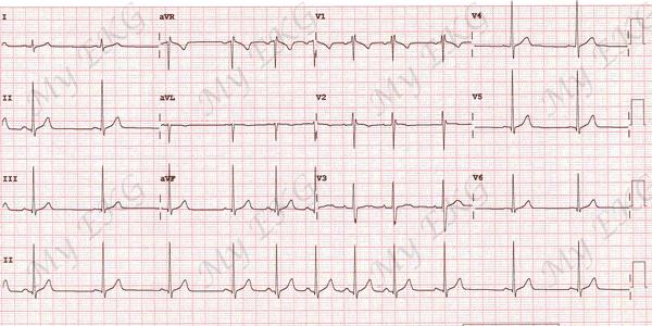 Tachycardia oka és tünete