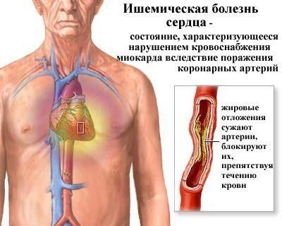 neurocirkulációs dystonia hipertóniával akupresszúrás arcmasszázs magas vérnyomás esetén