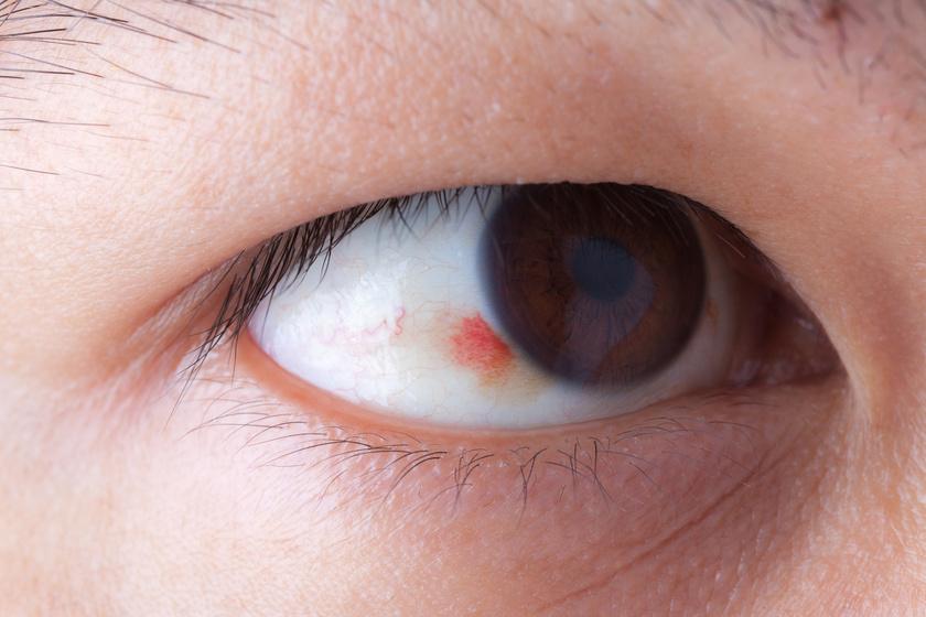 Vörös, gyulladt szem