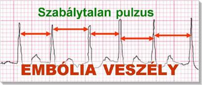 magas vérnyomás és ritmuszavarok orrvérzés magas vérnyomás elsősegély-gyógyszerek esetén