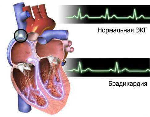 magas vérnyomású kardiogrammal)